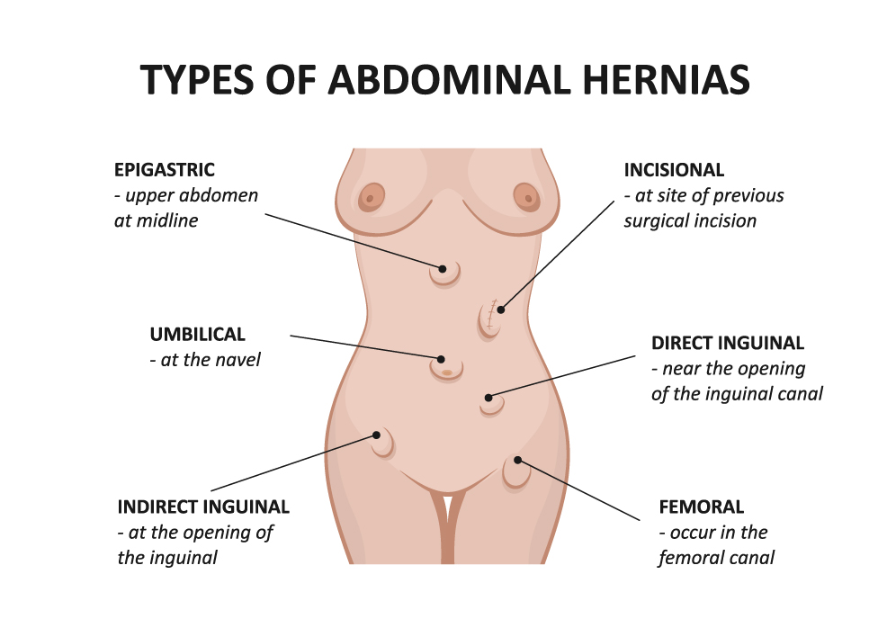 ABDOMINAL WALL HERNIA REPAIR - Dr Mark Boccola